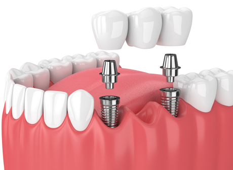 Implant Supported Bridges