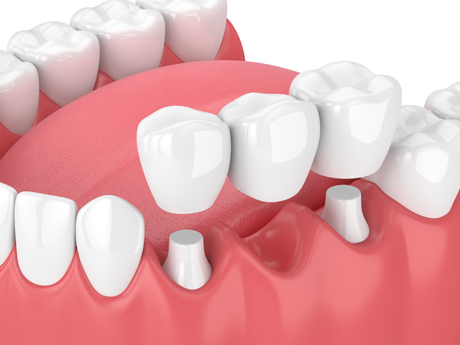 Traditional-Dental-Bridges