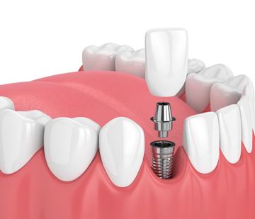 Implant-restorations